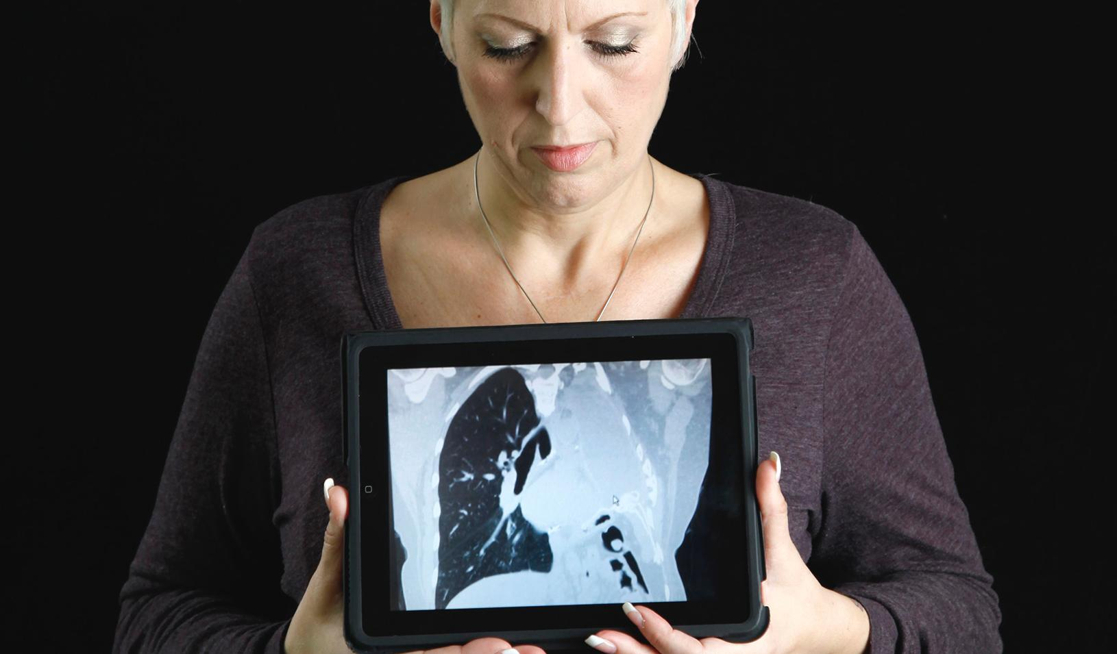 Woman holding a CT scan showing her missing left lung